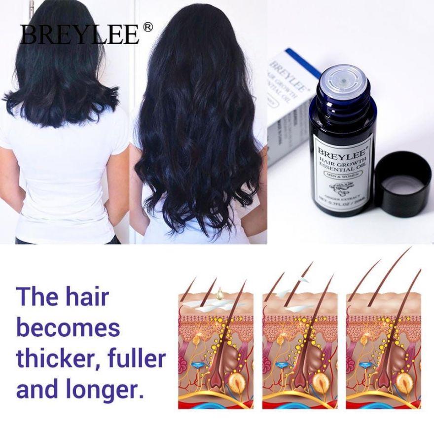 Средство против выпадения волос и для роста волос BREYLEЕ, 20 мл (01500)